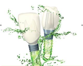 Smiledoc Impianti Dentali