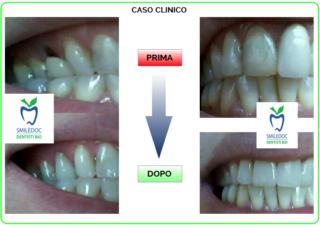Smiledoc-Caso-Clinico