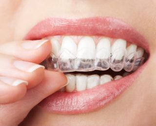 Smiledoc Ortodonzia Estetica