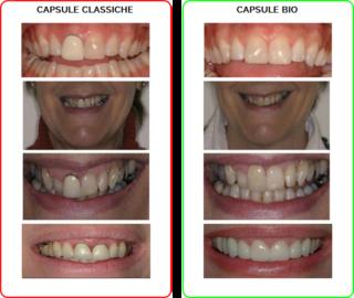 Smiledoc-Cabsule-Bio-Metal-Free