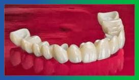 Smiledoc-protesi-fisse-materiale-biocompatibile (1)