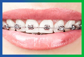 Smiledoc-comparision-braces-invisalign