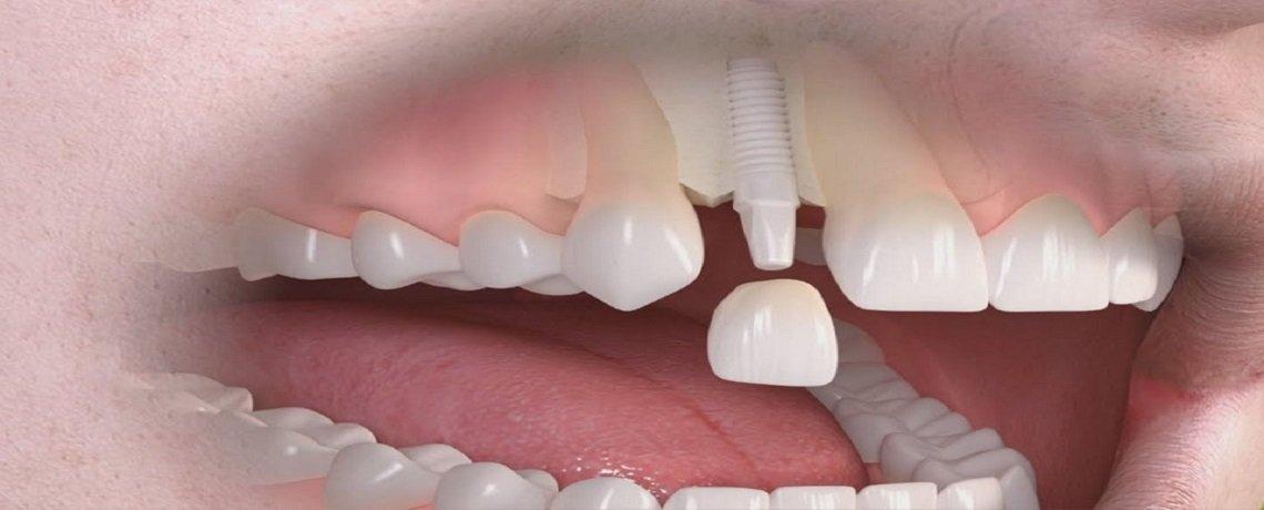 impianti-dentali-zirconio.jpg